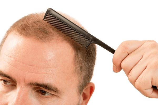 השתלת שיער מקצועית לגבר