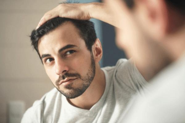 נשירת שיער אצל גברים