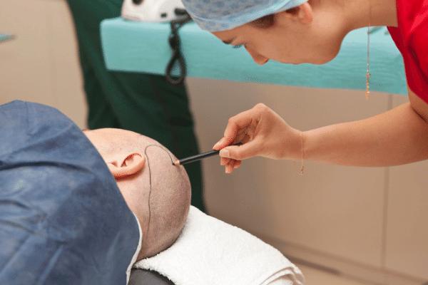 טיפול השתלת שיער לגברים