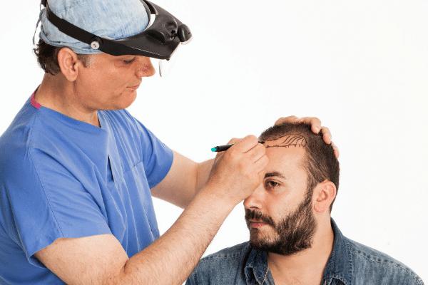 הכנה להשתלת שיער לגבר