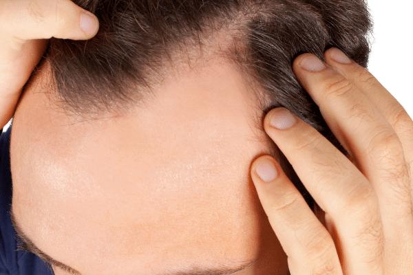 איש הזקוק לביצוע שיקום שיער דליל
