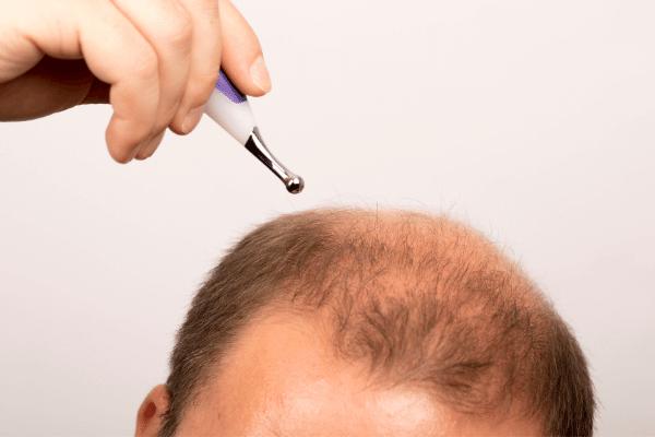 איש לפני ביצוע השתלת שיער