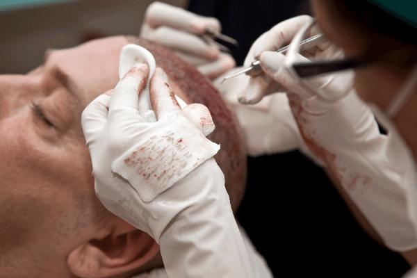 גבר בטיפול השתלת שיער