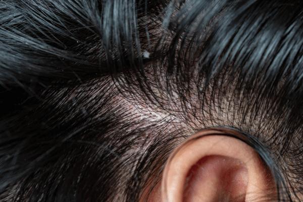 שיער עם קשקשים