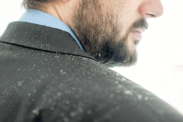 קשקשים על חליפה של גבר תסמינים של סבוריאה