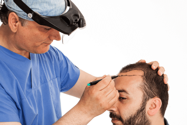 סרטוט לראש של בן אדם לפני השתלה