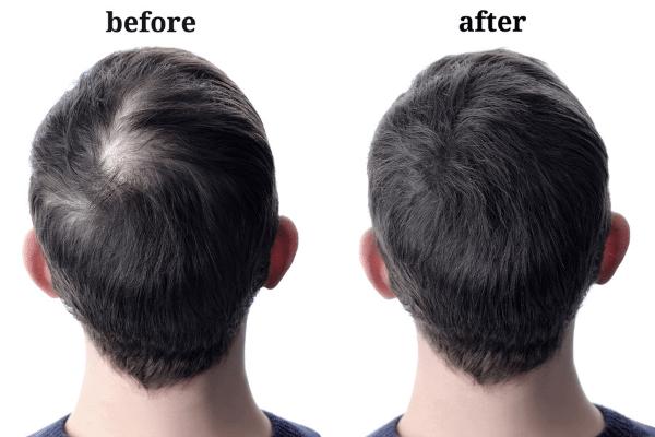 מילוי שיער ביו פייבר לפני ואחרי