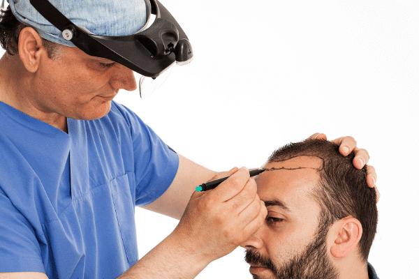 תכנון הראש להשתלת שיער