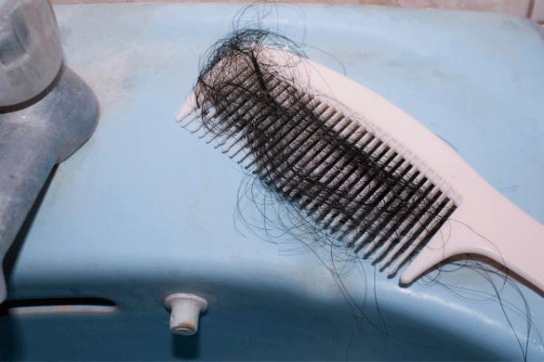 נשירת שיער