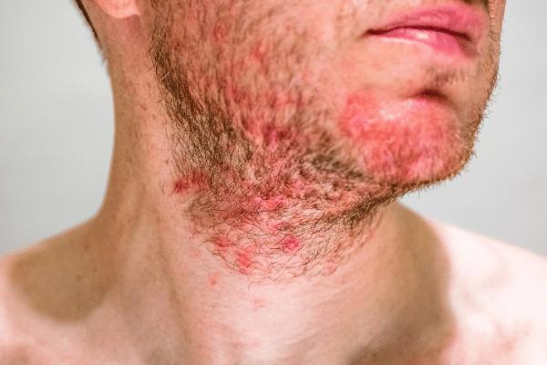 סבוריאה בעור