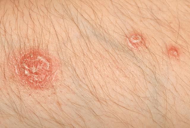 פסוריאזיס מדבק