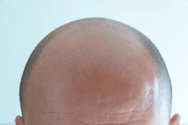 השתלת שיער בשיטת ביופייבר לגברים